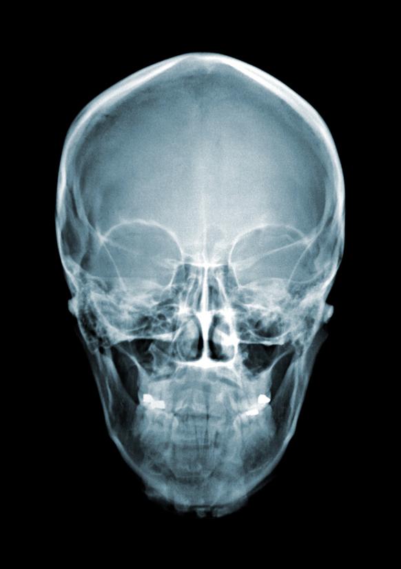 рентгенография скуловых костей.