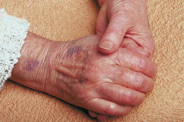 bruised elder hands1 1